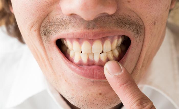 入れ歯に向いている人